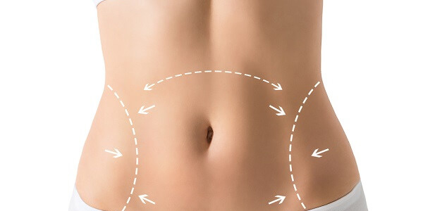 Tudo-sobre-abdominoplastia