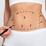 Abdominoplastia: Como é o pós-cirúrgico?