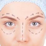 Cirurgia de blefaroplastia – Como funciona?