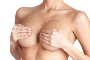 cirurgia de mamoplastia de aumento