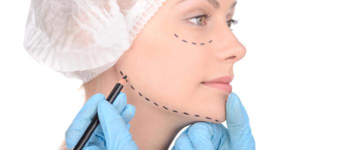cirurgia plástica do queixo - mentoplastia