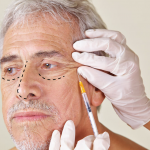 Rinoplastia senil – Plástica de nariz para idosos