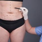 Abdominoplastia pós bariátrica