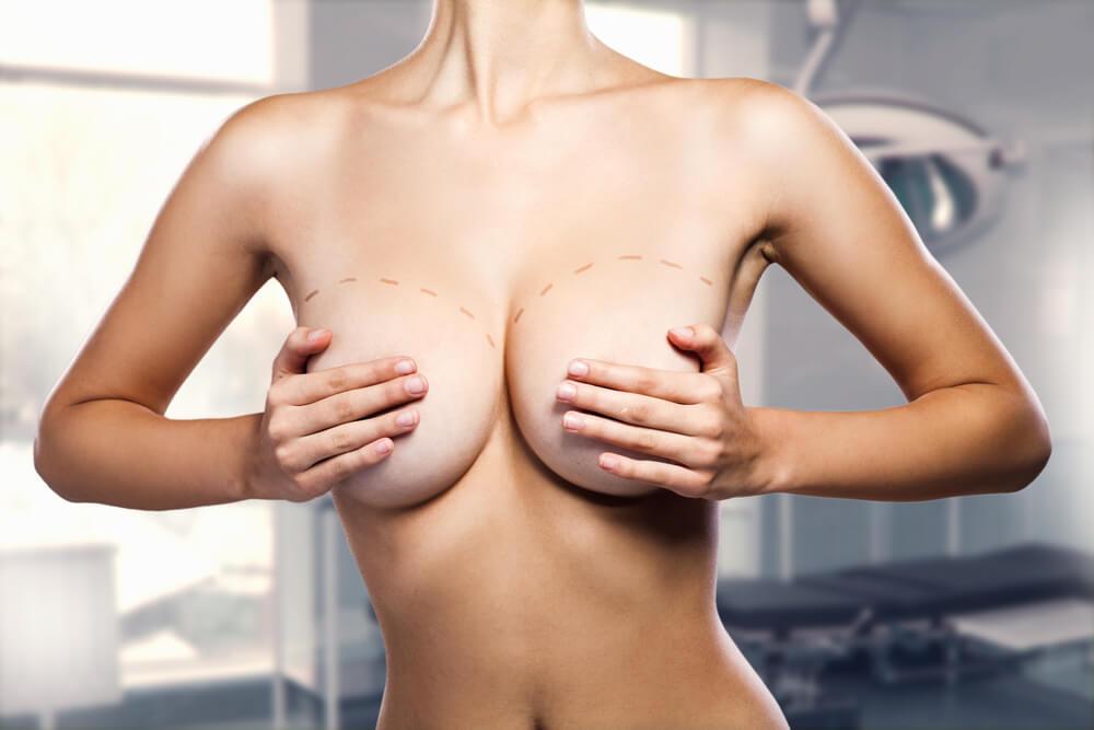 Pós-operatório-da-mamoplastia-de-aumento