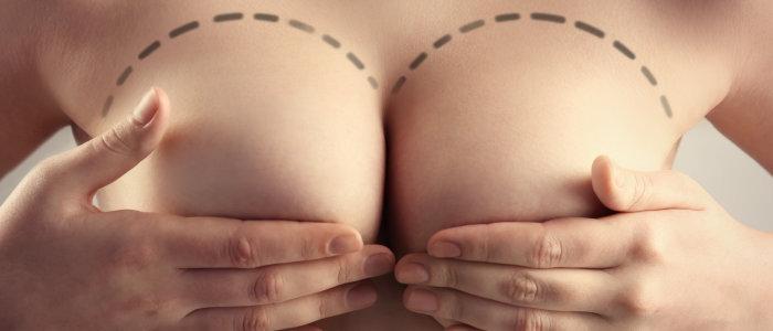 É possível associar a mamoplastia a outra cirurgia plástica?