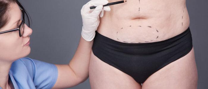 abdominoplastia em ancora