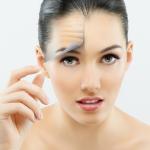 Recomendações após aplicação de botox