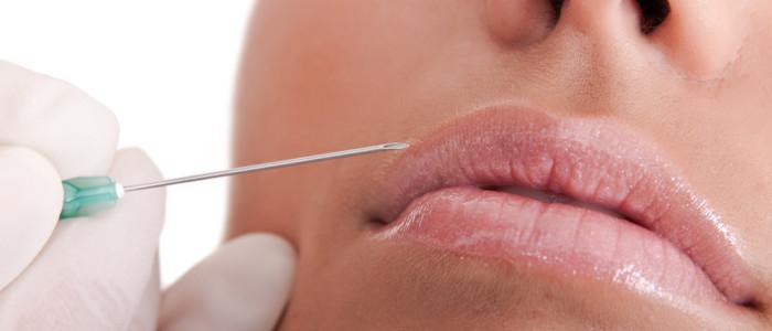 Principais vantagens do preenchimento labial